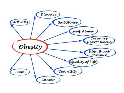 Advice after having an obesity operation