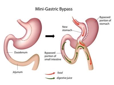 chirurgie pour perte de poids